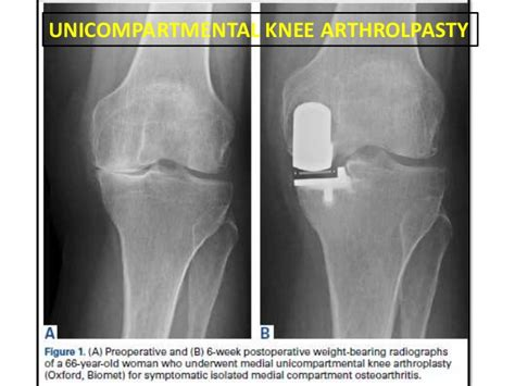 HTO vs UKA in unicompartmental OA Knee