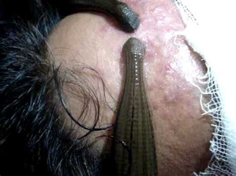 Leech therapy in Ayurveda